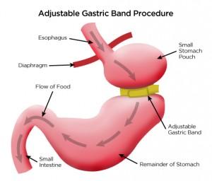 Gastric-Band-Illus-300x256
